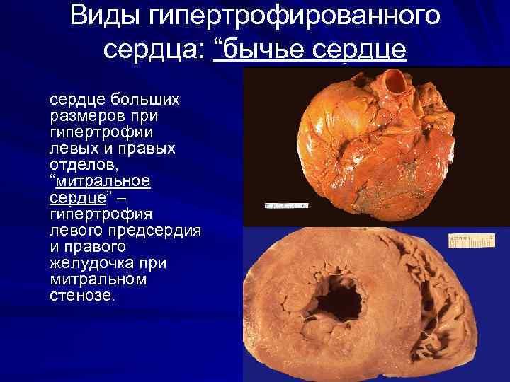 """Виды гипертрофированного сердца: """"бычье сердце больших размеров при гипертрофии левых и правых отделов, """"митральное"""