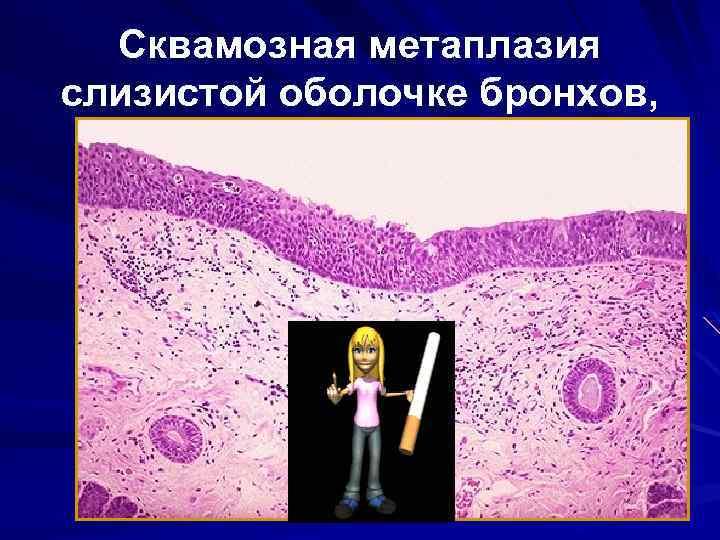 Сквамозная метаплазия слизистой оболочке бронхов,