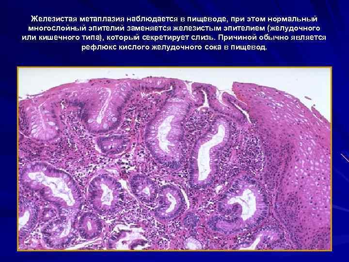 Железистая метаплазия наблюдается в пищеводе, при этом нормальный многослойный эпителий заменяется железистым эпителием (желудочного