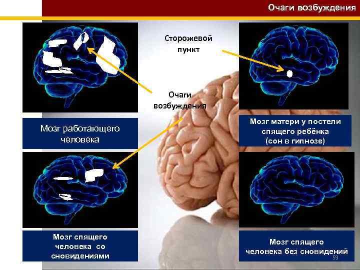 Очаги возбуждения Сторожевой пункт Очаги возбуждения Мозг работающего человека Мозг матери у постели спящего