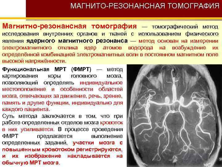 МАГНИТО-РЕЗОНАНСНАЯ ТОМОГРАФИЯ Магнитно-резонансная томография — томографический метод исследования внутренних органов и тканей с использованием