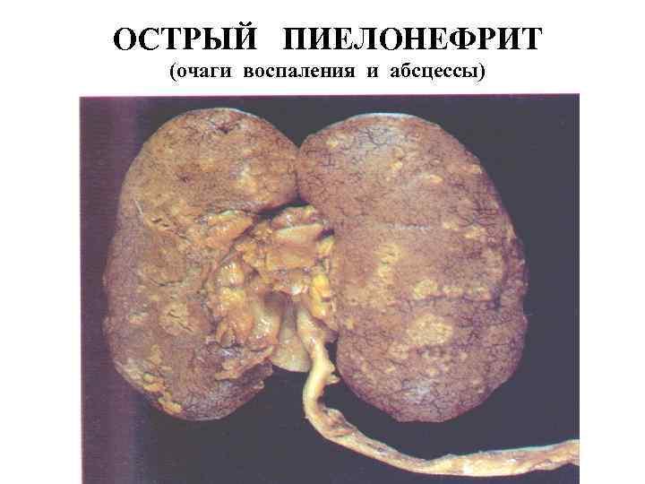 ОСТРЫЙ ПИЕЛОНЕФРИТ (очаги воспаления и абсцессы)