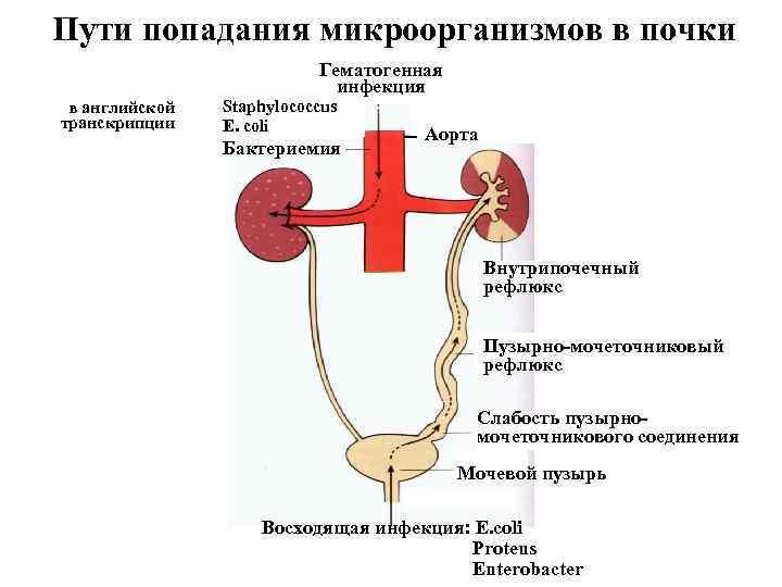 Пути попадания микроорганизмов в почки Гематогенная инфекция в английской транскрипции Staphylococcus E. coli Бактериемия