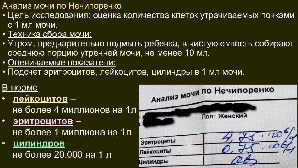 Анализ мочи нечипоренко у беременных 100