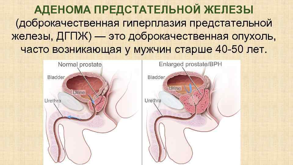 Как лечить доброкачественную гиперплазию предстательной железы
