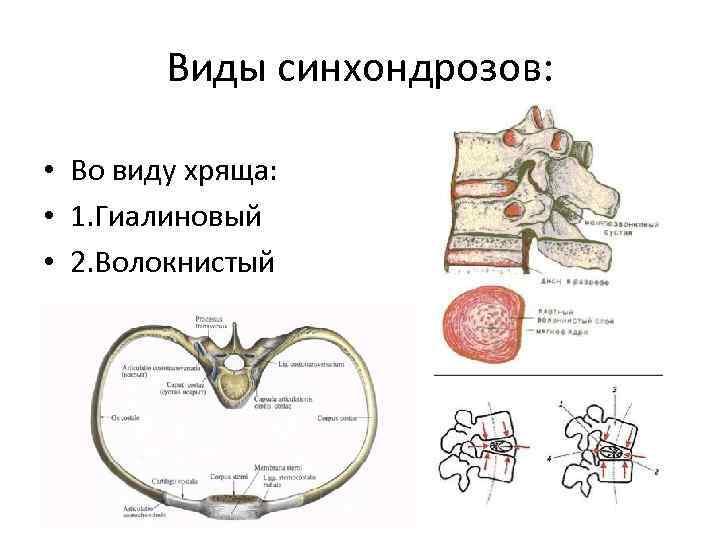 Виды синхондрозов: • Во виду хряща: • 1. Гиалиновый • 2. Волокнистый