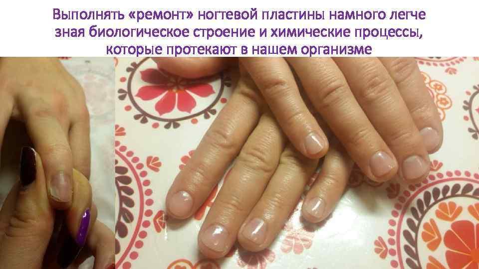 Выполнять «ремонт» ногтевой пластины намного легче зная биологическое строение и химические процессы, которые протекают