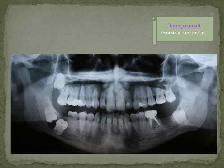 Панорамный снимок челюсти.