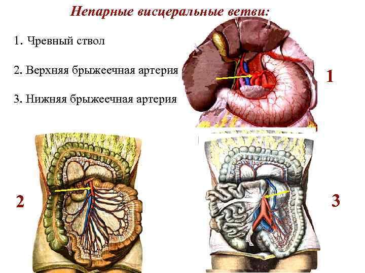 Непарные висцеральные ветви: 1. Чревный ствол 2. Верхняя брыжеечная артерия 1 3. Нижняя брыжеечная