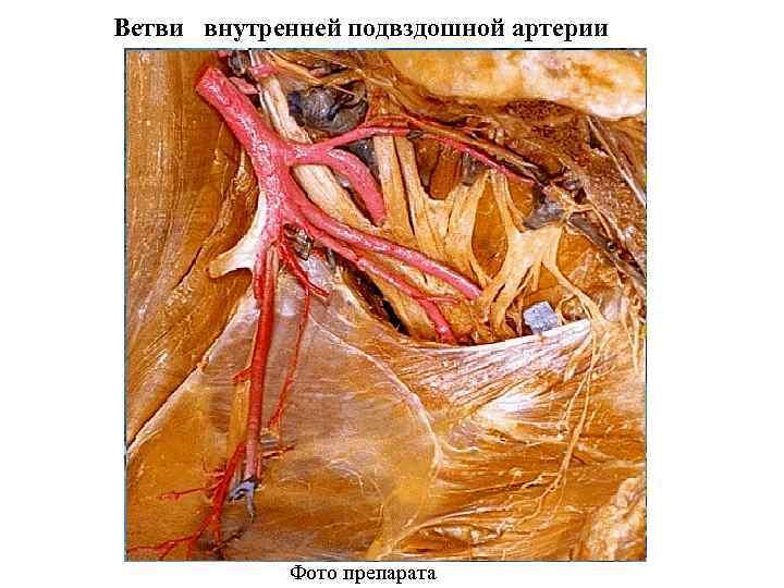 Ветви внутренней подвздошной артерии Фото препарата