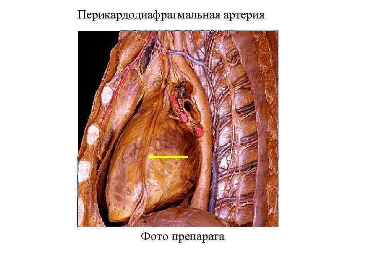 Перикардодиафрагмальная артерия Фото препарата