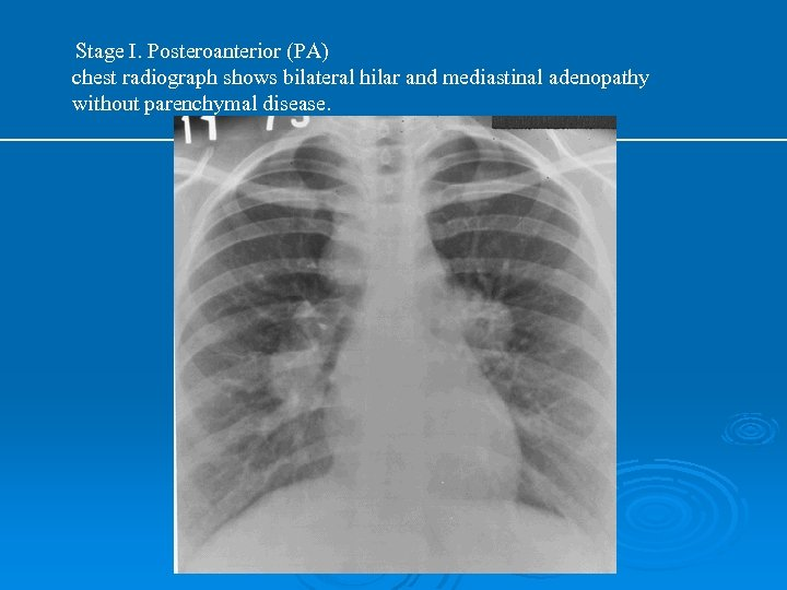 Stage I. Posteroanterior (PA) chest radiograph shows bilateral hilar and mediastinal adenopathy without parenchymal