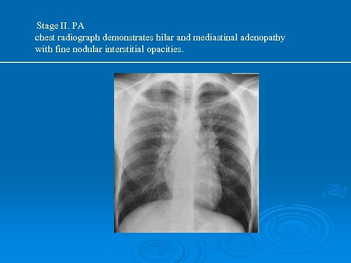 Stage II. PA chest radiograph demonstrates hilar and mediastinal adenopathy with fine nodular interstitial