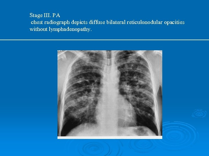Stage III. PA chest radiograph depicts diffuse bilateral reticulonodular opacities without lymphadenopathy.
