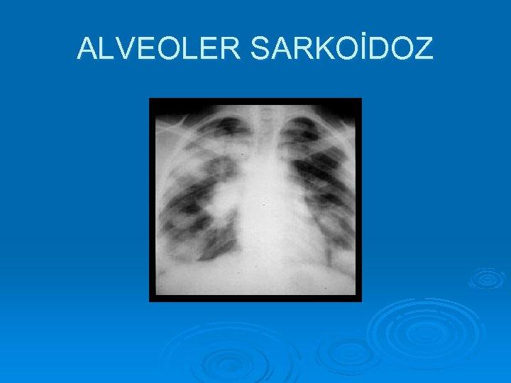 ALVEOLER SARKOİDOZ