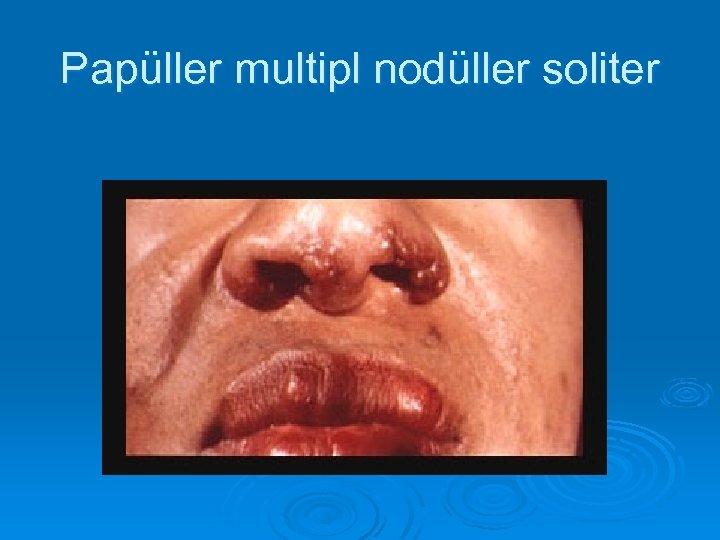 Papüller multipl nodüller soliter
