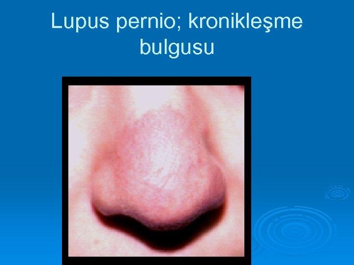Lupus pernio; kronikleşme bulgusu