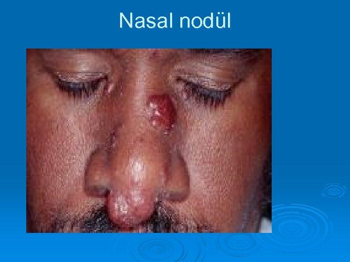 Nasal nodül