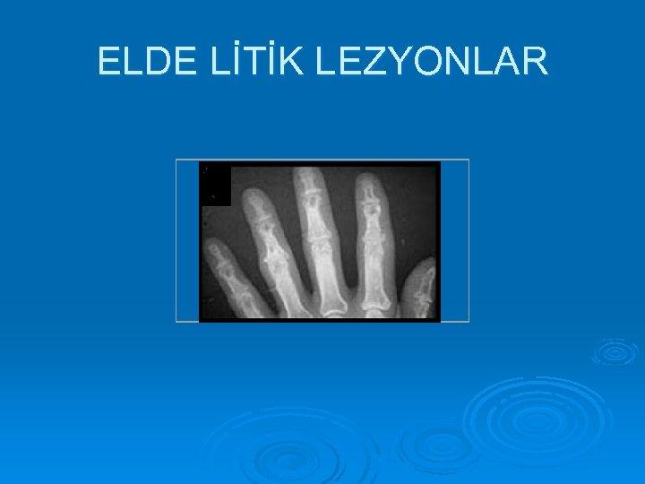 ELDE LİTİK LEZYONLAR