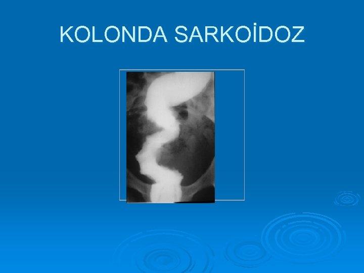 KOLONDA SARKOİDOZ