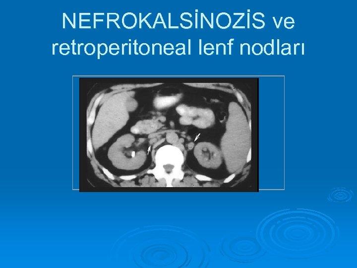 NEFROKALSİNOZİS ve retroperitoneal lenf nodları