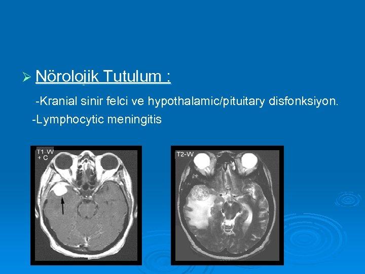 Ø Nörolojik Tutulum : -Kranial sinir felci ve hypothalamic/pituitary disfonksiyon. -Lymphocytic meningitis