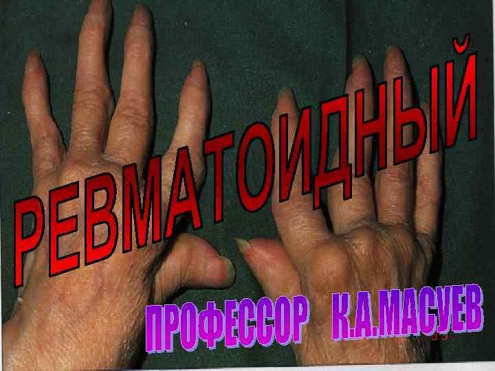 РЕВМАТОИДНЫЙ АРТРИТ ПРОФЕССОР МАСУЕВ К. А.