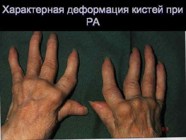 Характерная деформация кистей при РА