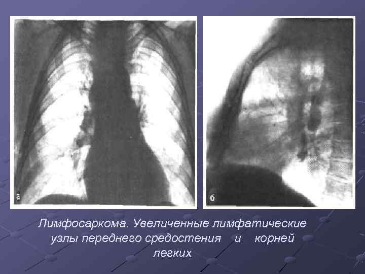 Лимфосаркома. Увеличенные лимфатические узлы переднего средостения и корней легких
