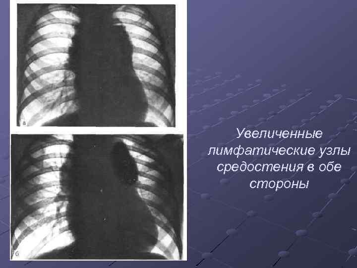 Увеличенные лимфатические узлы средостения в обе стороны