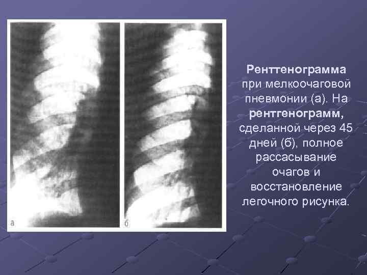 Ренттенограмма при мелкоочаговой пневмонии (а). На рентгенограмм, сделанной через 45 дней (б), полное рассасывание