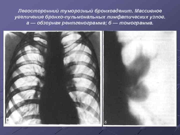 Левосторонний туморозный бронхоаденит. Массивное увеличение бронхо-пульмональных лимфатических узлов. а — обзорная рентгенограмма; б —