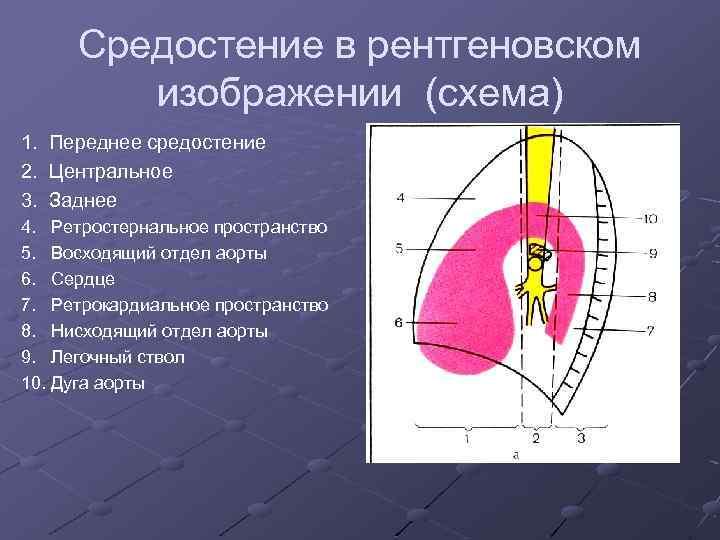 Средостение в рентгеновском изображении (схема) 1. Переднее средостение 2. Центральное 3. Заднее 4. Ретростернальное