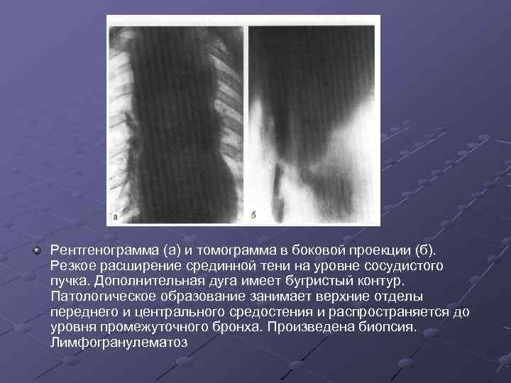 Рентгенограмма (а) и томограмма в боковой проекции (б). Резкое расширение срединной тени на уровне