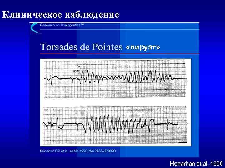 Клиническое наблюдение «пируэт» Monarhan et al. 1990