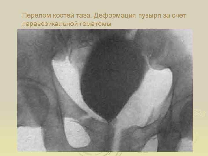 Перелом костей таза. Деформация пузыря за счет паравезикальной гематомы