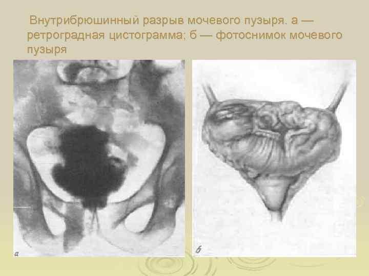 Внутрибрюшинный разрыв мочевого пузыря. а — ретроградная цистограмма; б — фотоснимок мочевого пузыря