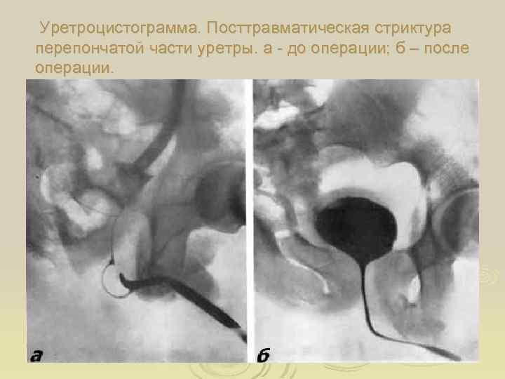 Уретроцистограмма. Посттравматическая стриктура перепончатой части уретры. а - до операции; б – после операции.