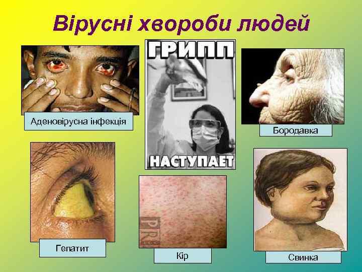 Вірусні хвороби людей Аденовірусна інфекція Гепатит Бородавка Кір Свинка