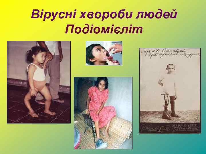 Вірусні хвороби людей Подіомієліт