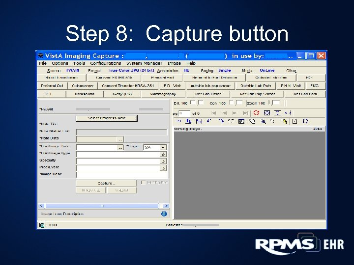 Step 8: Capture button