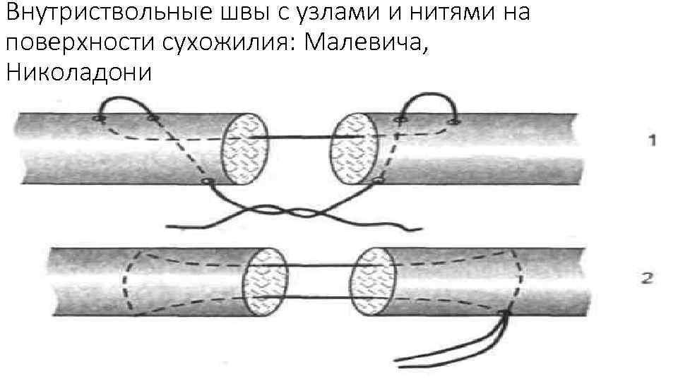 Внутриствольные швы с узлами и нитями на поверхности сухожилия: Малевича, Николадони