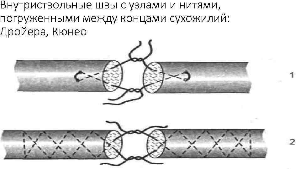 Внутриствольные швы с узлами и нитями, погруженными между концами сухожилий: Дройера, Кюнео