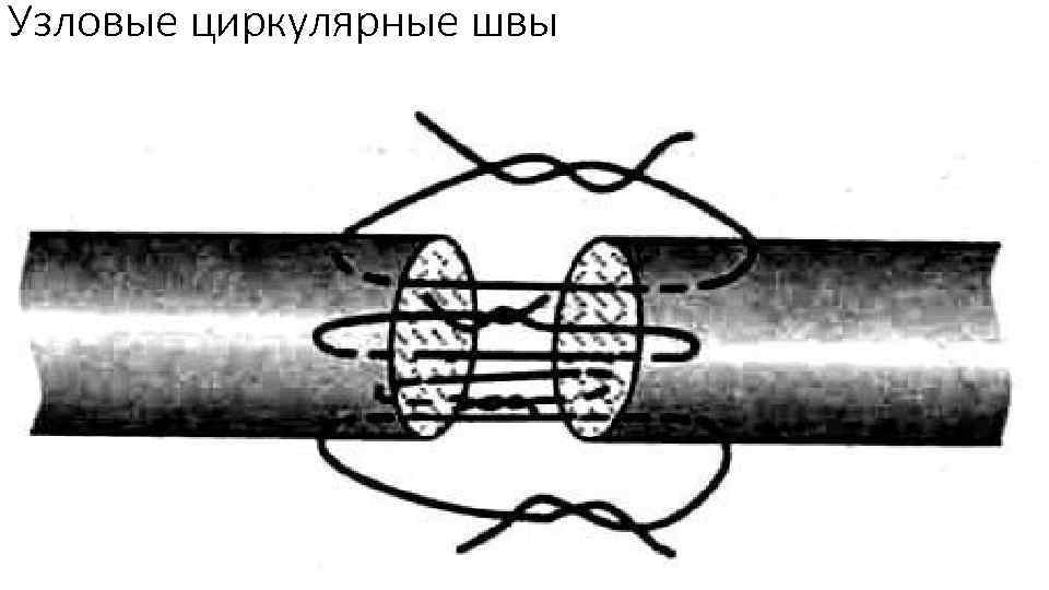 Узловые циркулярные швы