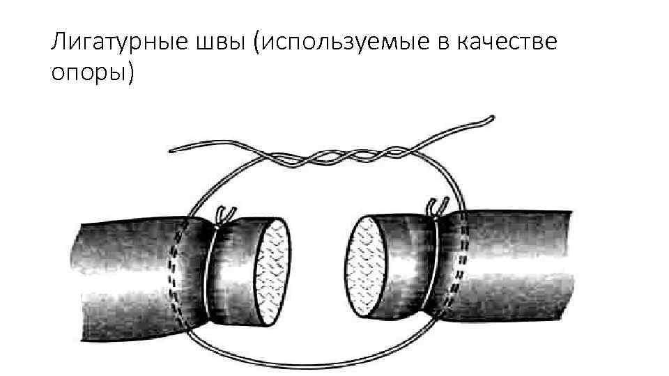 Лигатурные швы (используемые в качестве опоры)