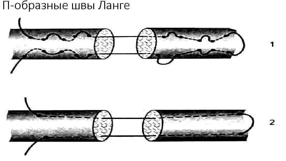 П-образные швы Ланге