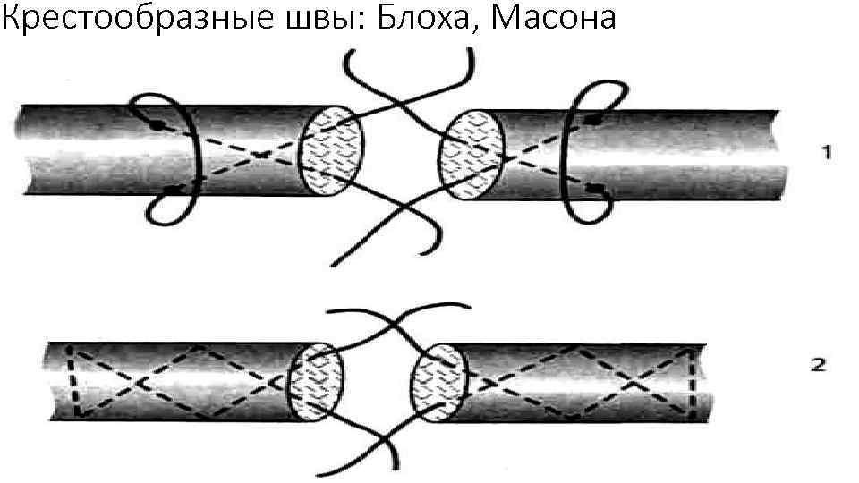 Крестообразные швы: Блоха, Масона