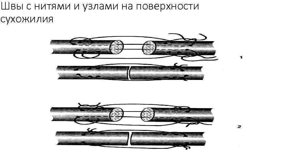 Швы с нитями и узлами на поверхности сухожилия