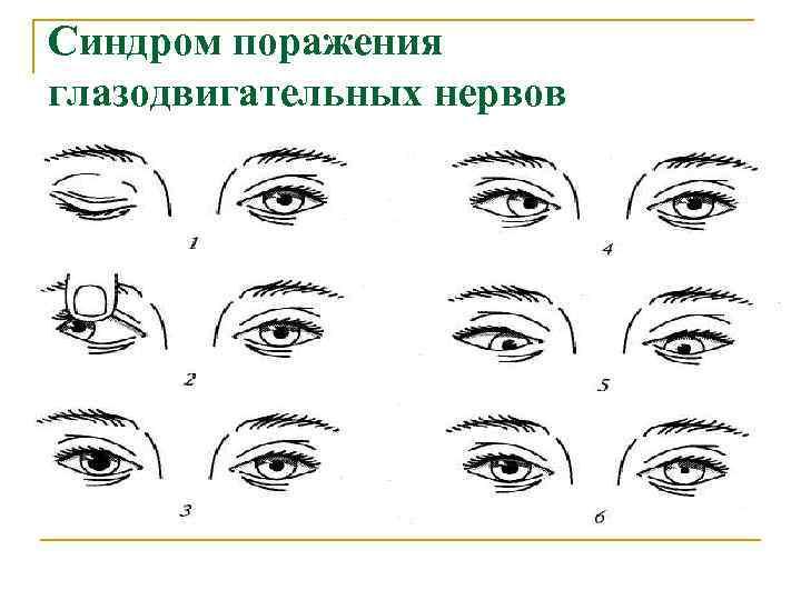 Синдром поражения глазодвигательных нервов