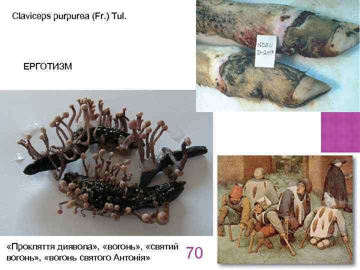 Claviceps purpurea (Fr. ) Tul. ЕРГОТИЗМ «Прокляття диявола» , «вогонь» , «святий вогонь» ,